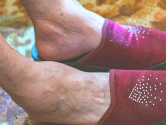 pies persona mayor