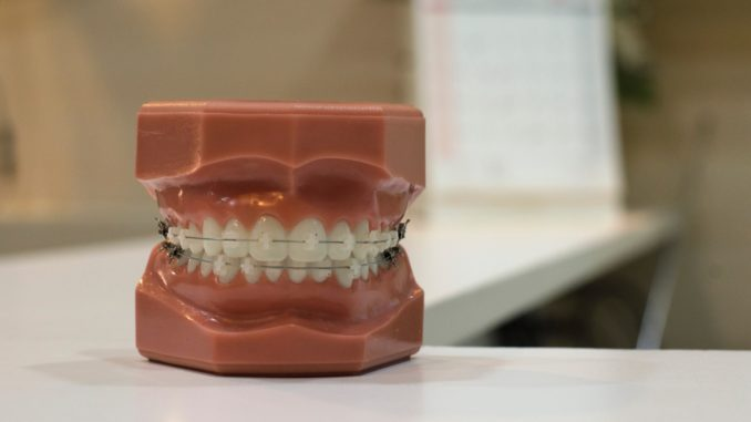 aparato ortodontico