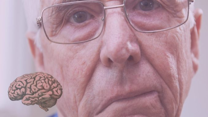 ictus y cerebro